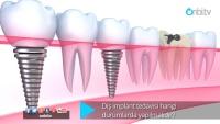 Diş implant tedavisi hangi durumlarda yapılmalıdır?