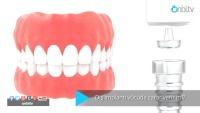 Diş implantı vücuda zarar verir mi?