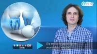 Diş implantı yaptırmanın avantajları nelerdir?