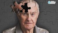 Alzheimer hastalığı tedavisinde neler yapılır?