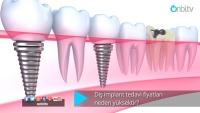 Diş implant tedavi fiyatları neden yüksektir?
