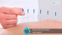 Akupunkturda tedavi nasıl yapılır?