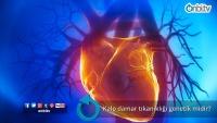 Kalp damar tıkanıklığı genetik midir?