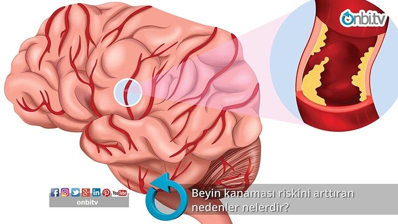 Beyin kanaması riskini arttıran nedenler nelerdir?